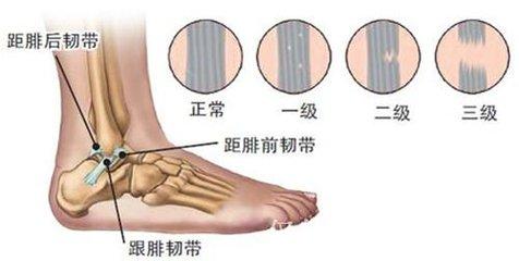运动疾病--踝关节韧带损伤